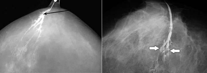Лечение после удаления внутрипротоковой папилломы молочной железы