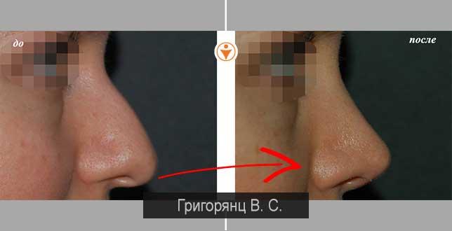Болит нос внутри, снаружи, кончик при нажатии или прикосновении: причины и лечение