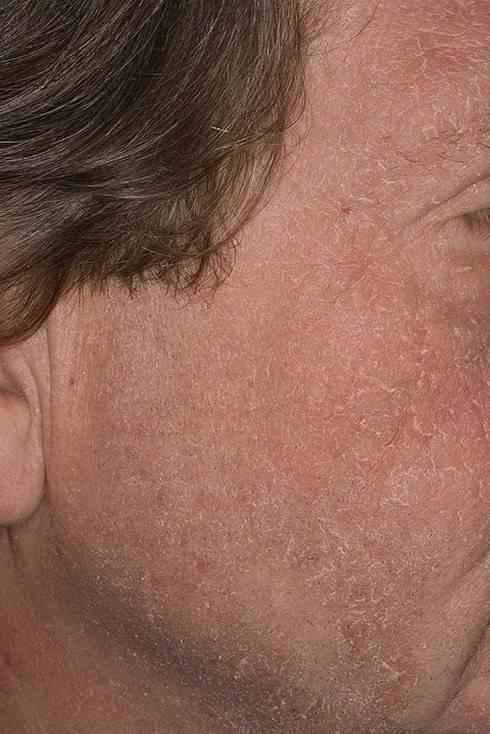 нейродермит на лице
