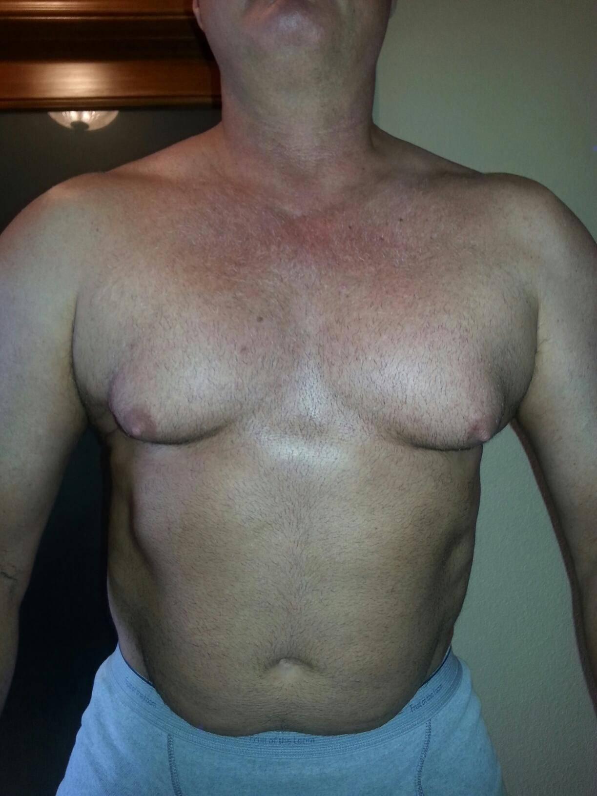 Симптомы мастопатии у мужчин. мастопатия: лечение народными средствами в домашних условиях.