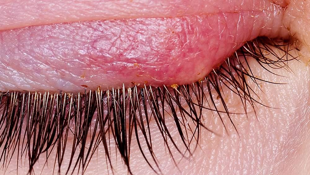 Какие мази подходят для лечения блефарита?