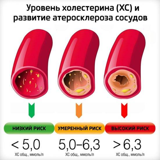 Курение и холестерин – как пагубная привычка влияет на атеросклероз