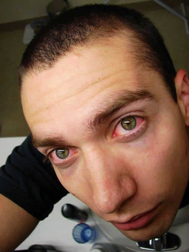 усталость глаз симптомы
