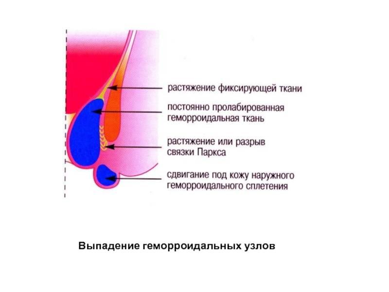 Как убрать или уменьшить геморроидальные узлы