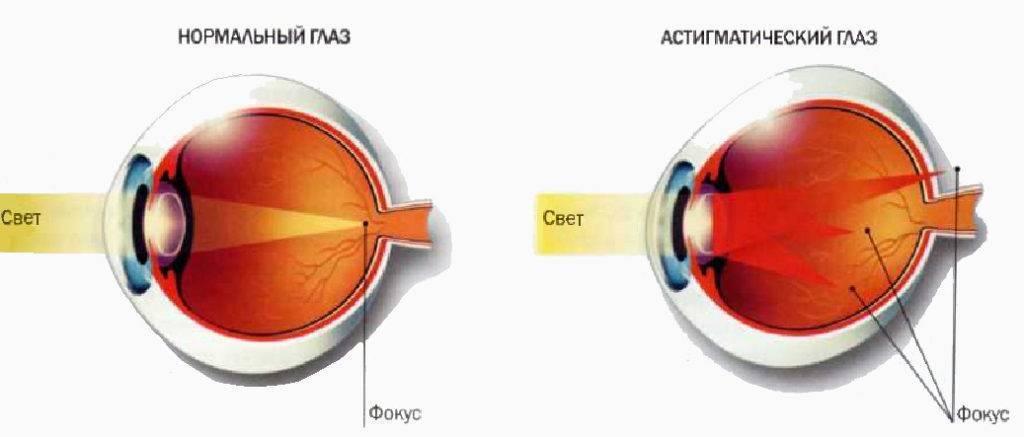 Врач поставил мне диагноз астигматизм — что это за патология и как вернуть зрение?