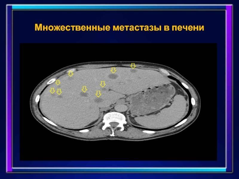 Сколько проживет человек с метастазами в печени