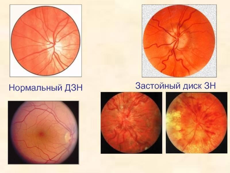 застойный диск зрительного нерва лечение