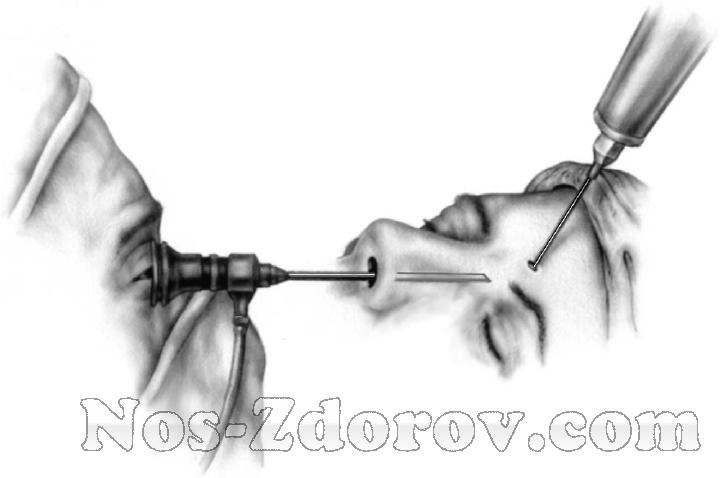 Трепанопункция лобной пазухи — советы отоларинголога