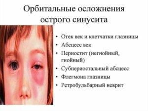 комаровский гайморит