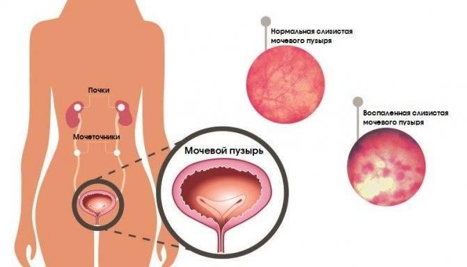 Как лечить одновременно цистит и молочницу