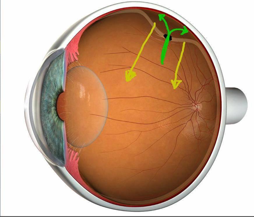 Признаки и симптомы отслойки (отслоения) сетчатки глаза
