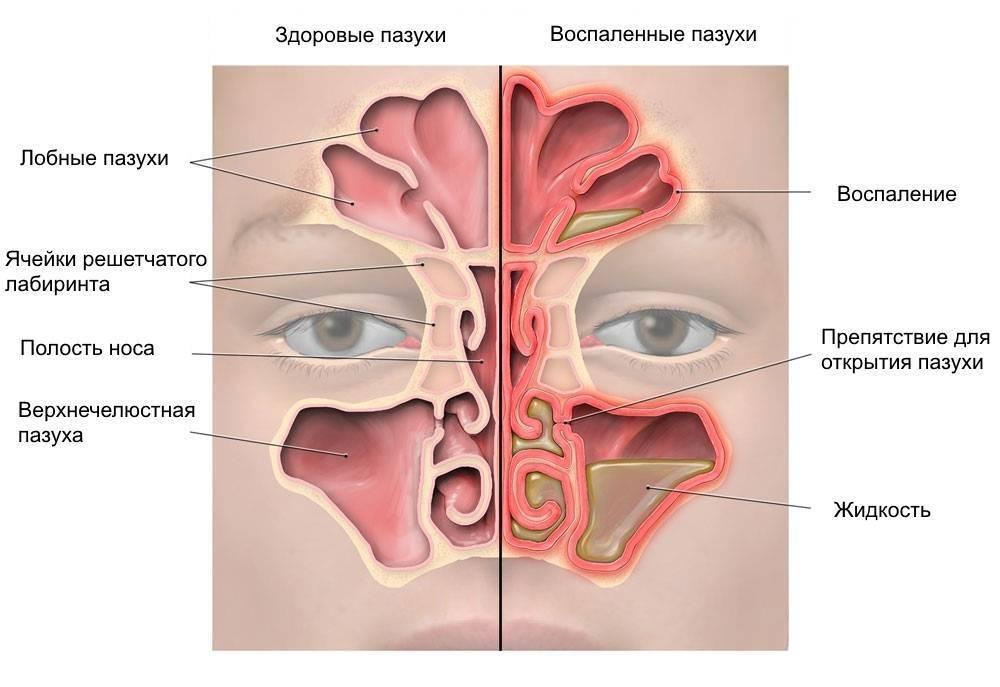 Хронический ринит: симптомы и лечение у взрослых — симптомы