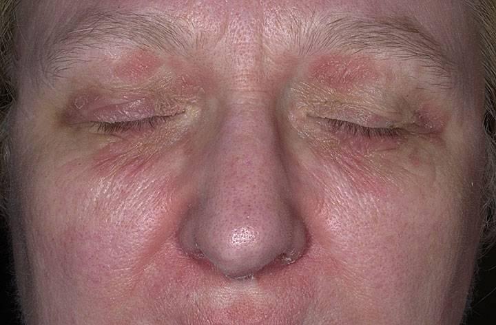 как лечить себорейный дерматит на лице