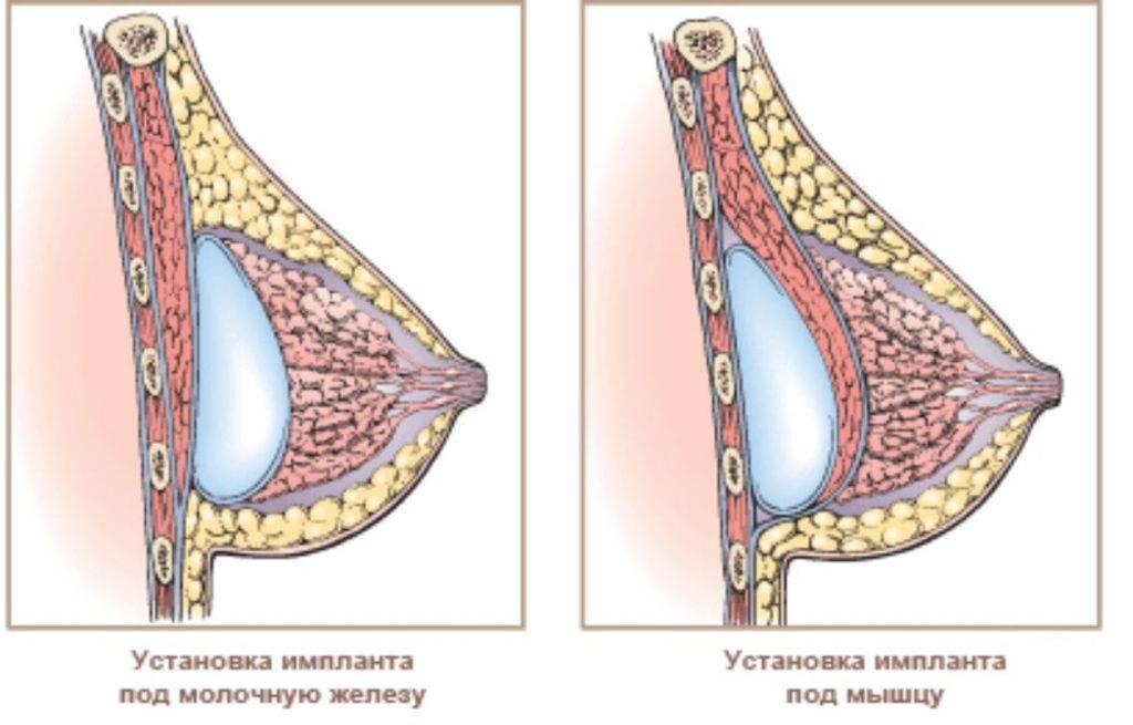 Причины набухания груди у женщин, признаки и как это лечить