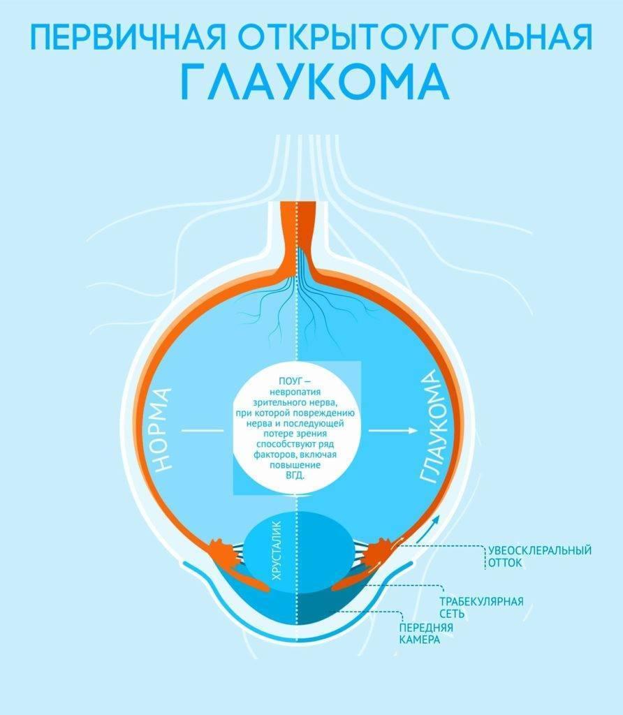 чем отличается открытоугольная глаукома от закрытоугольной