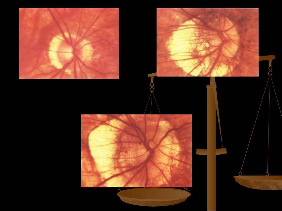 миопия средней степени обоих глаз