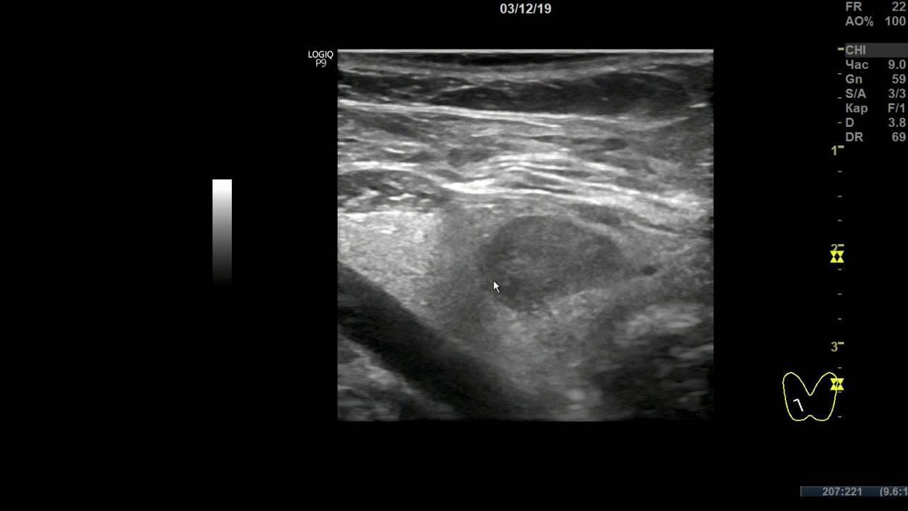 Что делать, если на перешейке щитовидки обнаружен узел