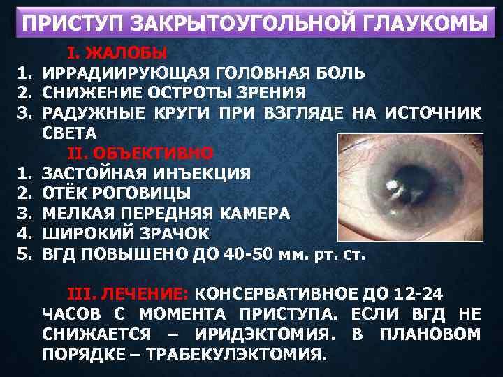 Острый приступ глаукомы: симптомы и неотложная помощь