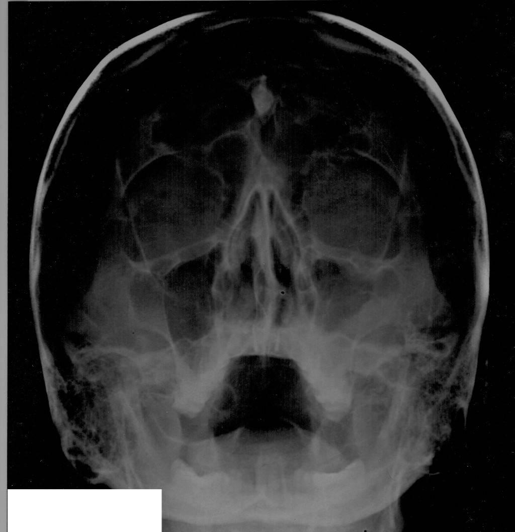 аплазия правой лобной пазухи