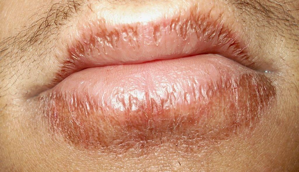 дерматит на губах чем лечить
