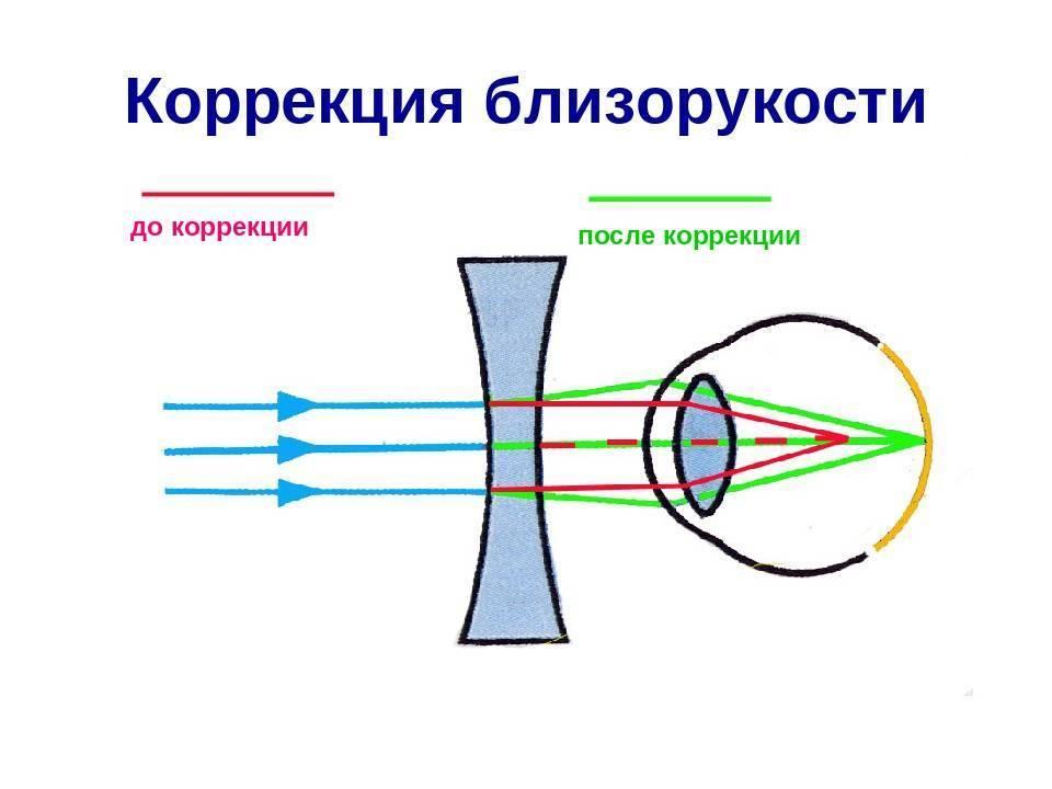 операция на глаза близорукость