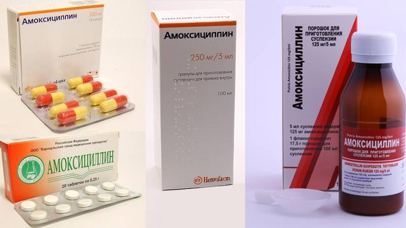 Лечение гайморита у взрослых в домашних условиях и антибиотиками