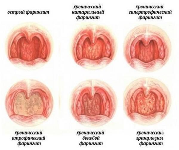 Симптомы и лечение назофарингита у взрослых