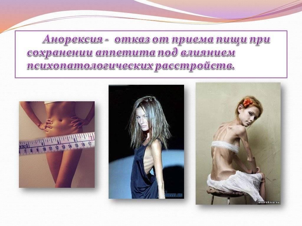 Как понять, что у подростка анорексия: 8 признаков для родителей. кто лечит анорексию