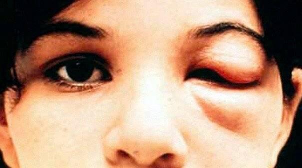 Симптомы и лечения заражения паразитами при болезни шагаса