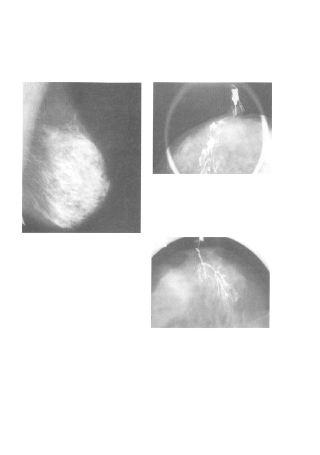 Дисгормональная мастопатия молочных желез
