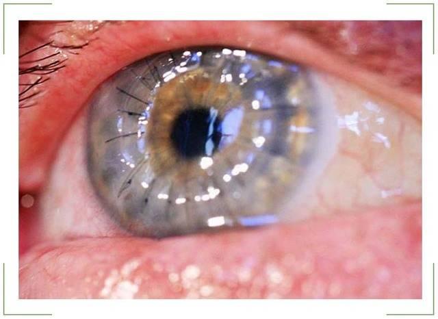 Пленка на глазу у человека как будто что-то мешает: что это такое, причины, что делать