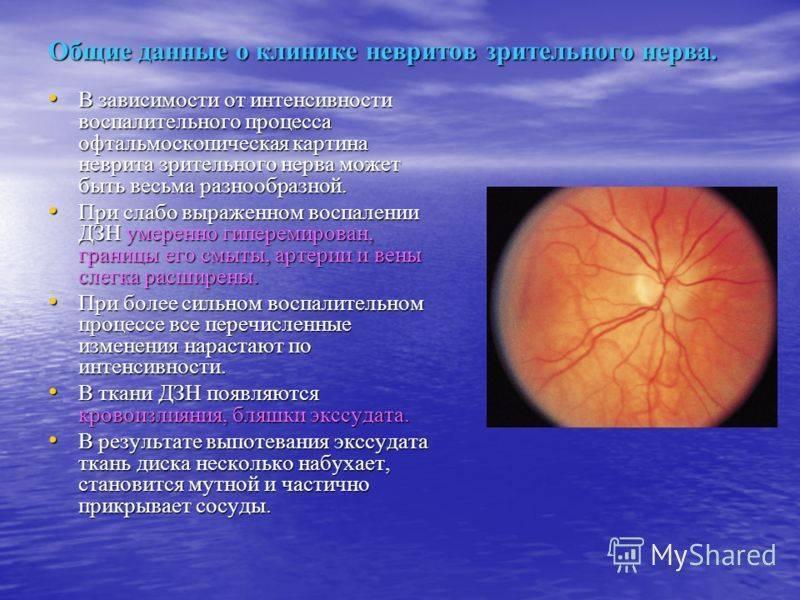 Причины и симптомы неврита зрительного нерва и его лечение