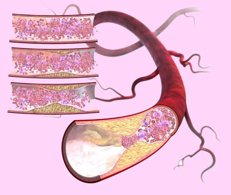 лечение атеросклероза народными средствами чесноком
