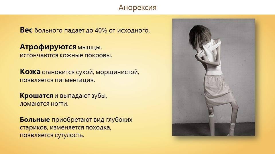 8 признаков анорексии у подростков