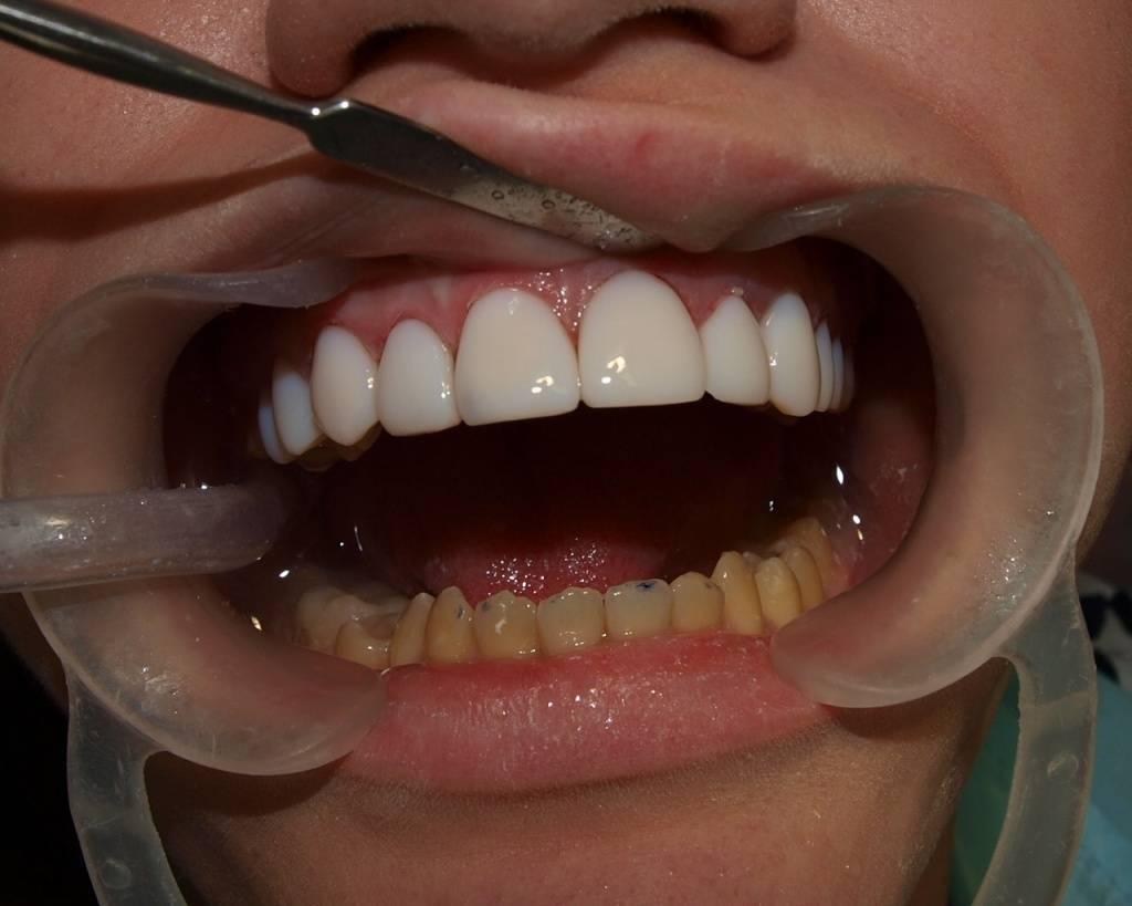 Эстетическая и художественная реставрация зубов