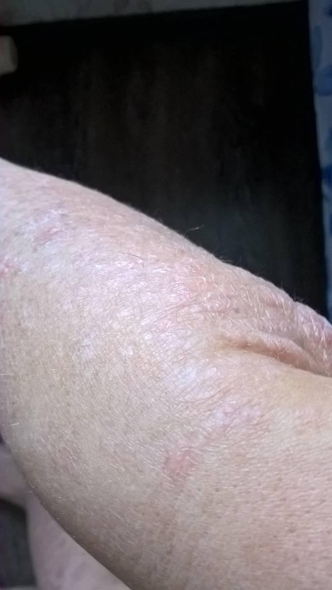 как вылечить псориаз на локтях