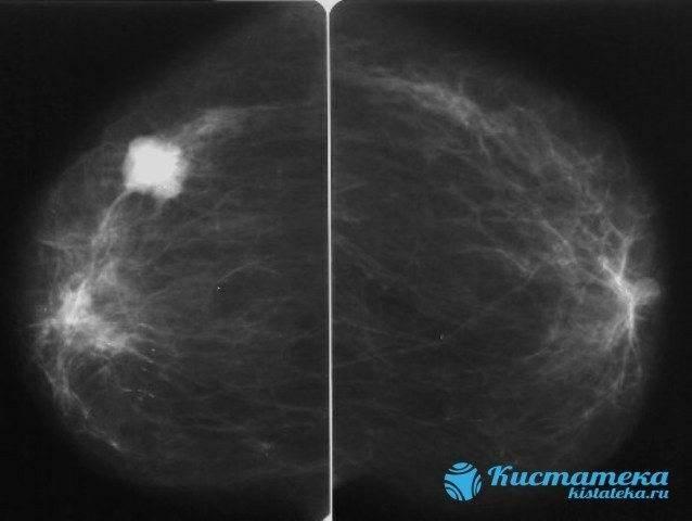 Как подготовиться к маммографии молочных желез?