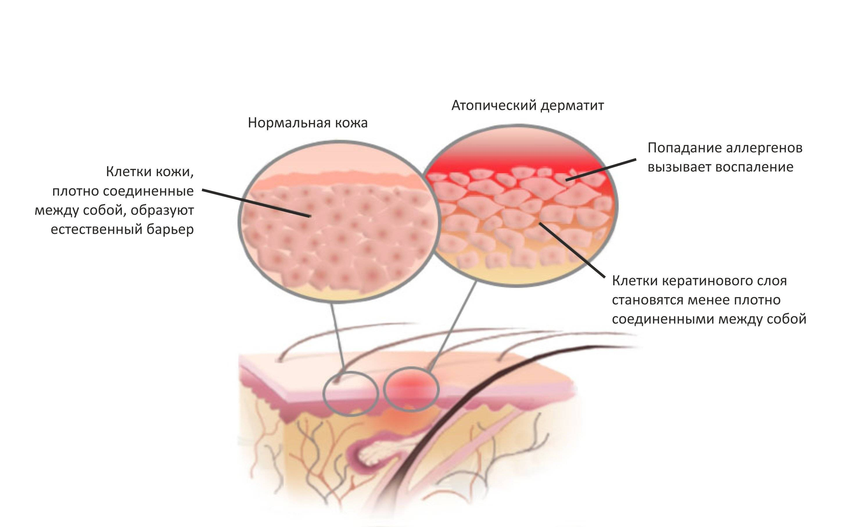 Ограниченный нейродермит у взрослых - причины, симптомы, лечение таблетками и мазями