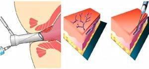 Лечение геморроя методом склеротерапии