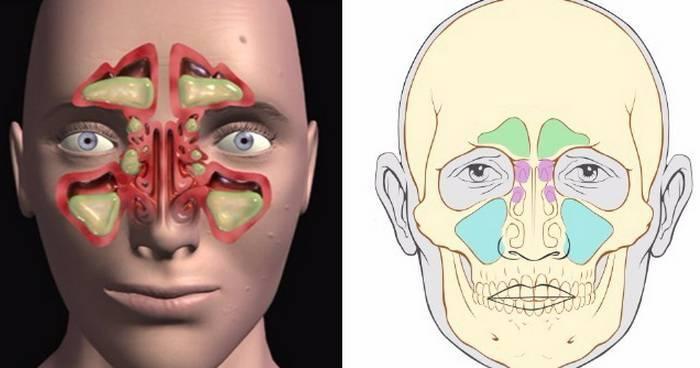 Воспаление пазух носа. симптомы, лечение у взрослого, ребенка препаратами, народными средствами