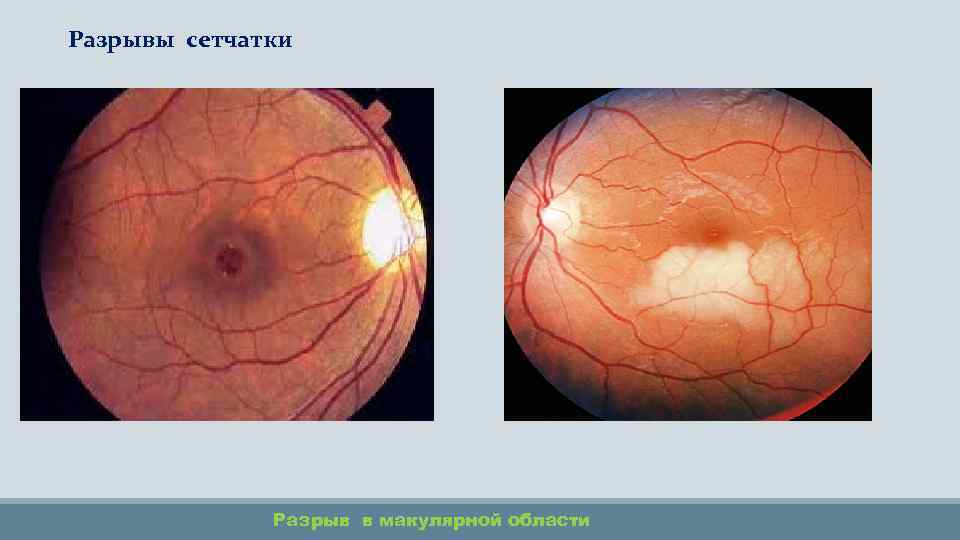 Разрыв сетчатки глаза: серьезно ли это? разновидности и особенности.
