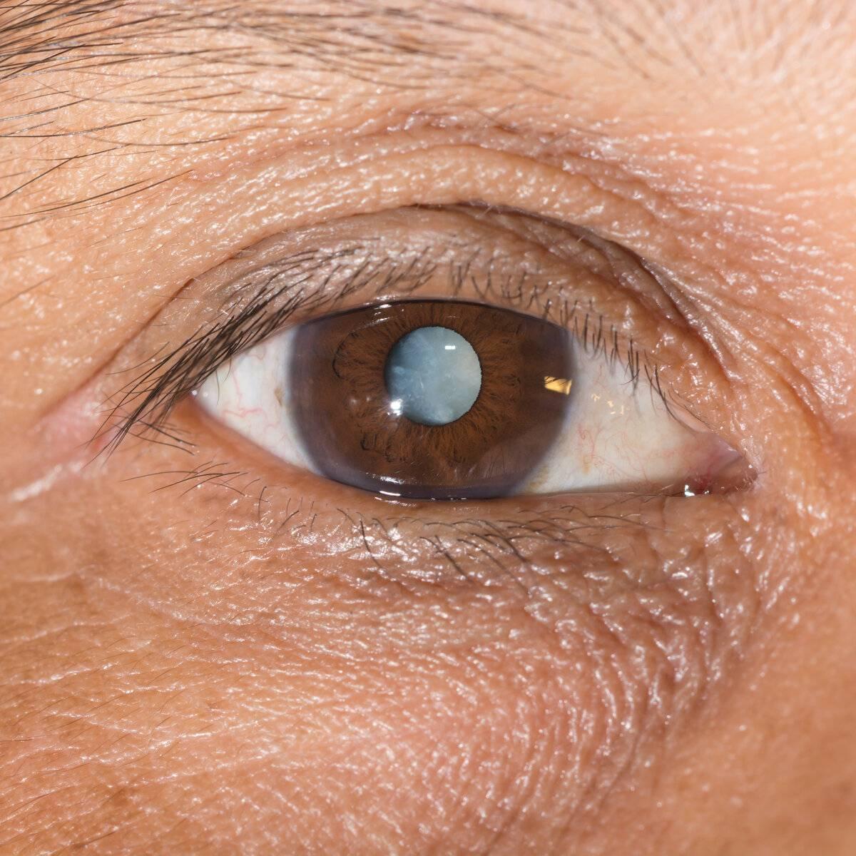 Глаукома: причины и проявления