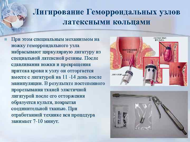 лечение геморроя лигирование латексными кольцами