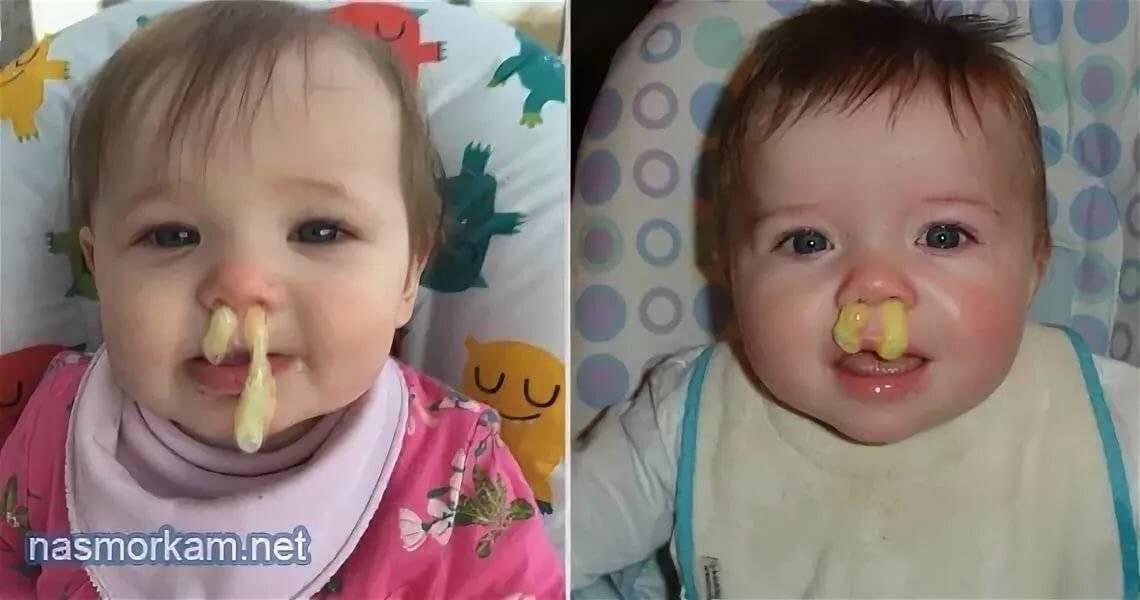 желтые сопли у ребенка лечение