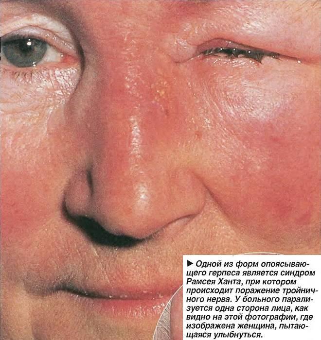 герпес на лице симптомы