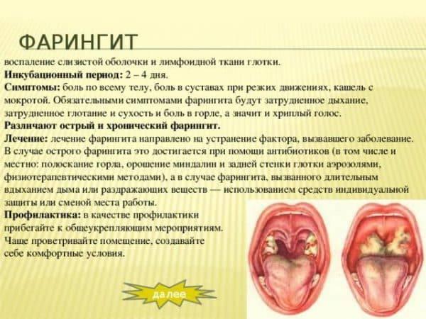 Ларингит: лечение у взрослых, симптомы, возможные осложнения
