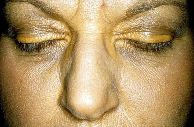 Как устранить холестериновые бляшки под глазами?