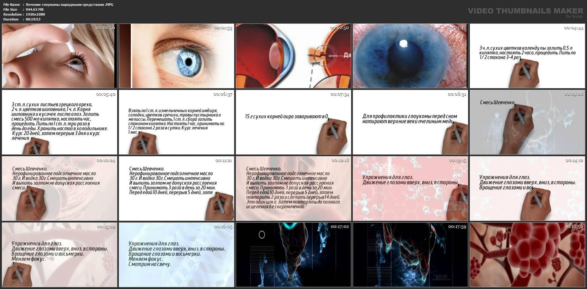 глаукома народные методы лечения
