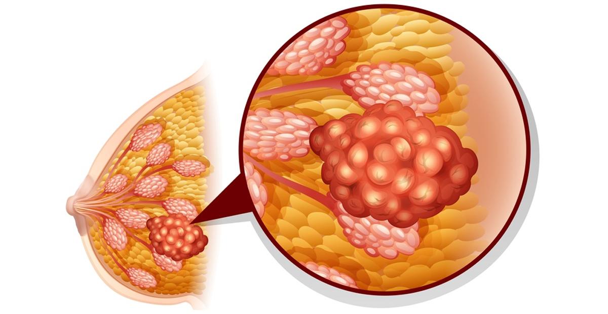 Мастопатия. причины, симптомы и признаки, диагностика и лечение патологии