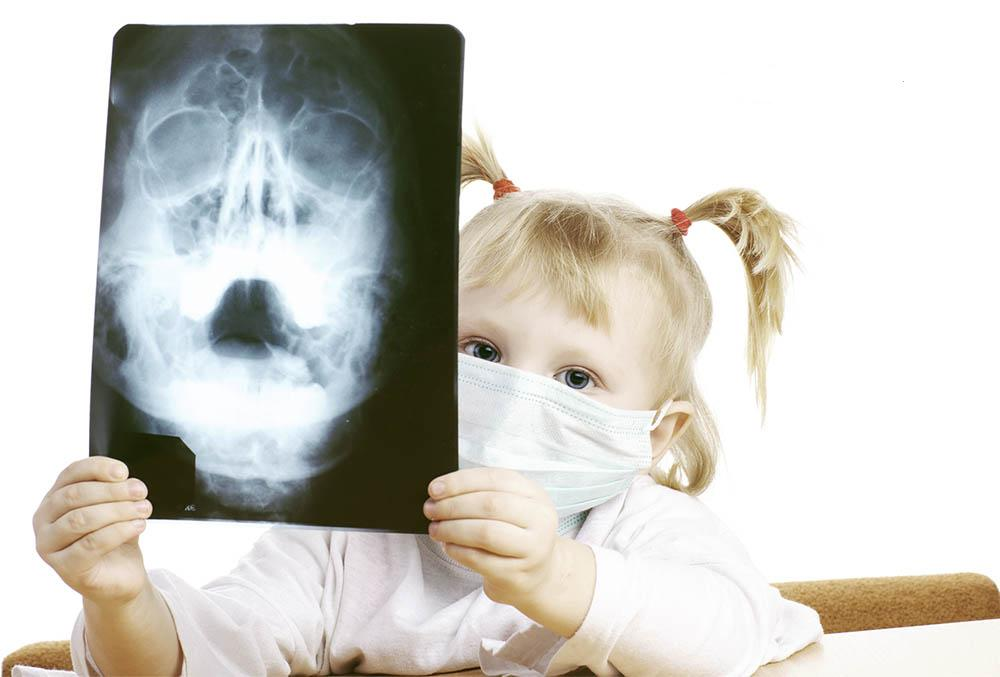 как лечить гайморит у ребенка 5 лет